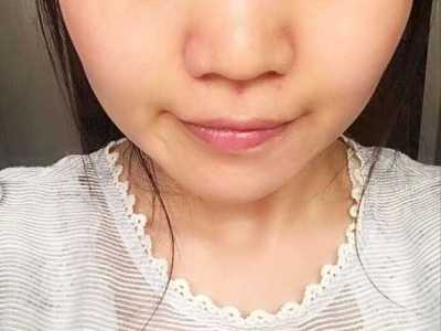 隆鼻可以使用美容仪吗 家用射频美容仪你还敢用吗