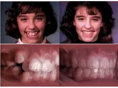 牙套矫正原理 牙套的工作原理居然是让你的牙床溶解